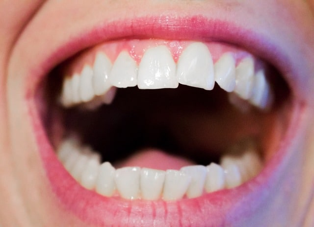 dolore in odontoiatria cause sintomi e rimedi dei dolori ai denti